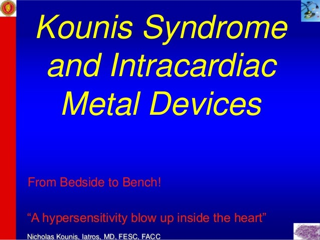 "Kounis Syndrome   and Intracardiac    Metal DevicesFrom Bedside to Bench!""A hypersensitivity blow up inside the heart""Nich..."