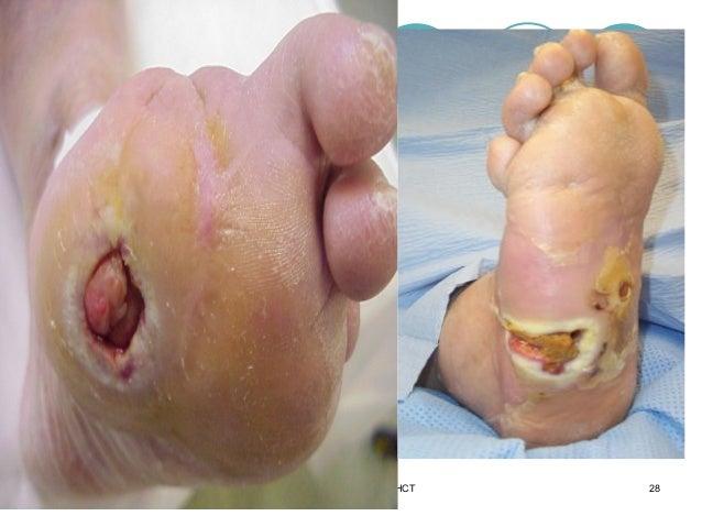 Foot Infection Symptoms & Treatment Options   Advanced ...