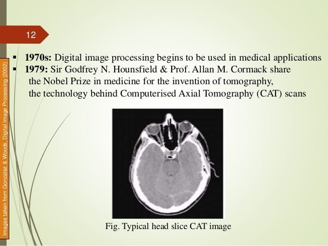 Fig. Typical head slice CAT image  1970s: Digital image processing begins to be used in medical applications  1979: Sir ...