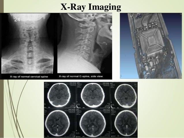 X-Ray Imaging 24