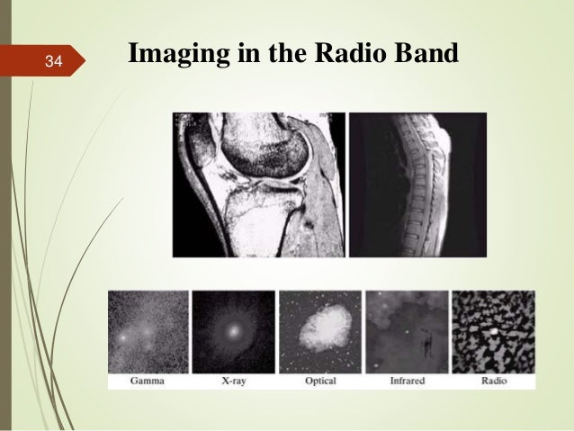 Imaging in the Radio Band34