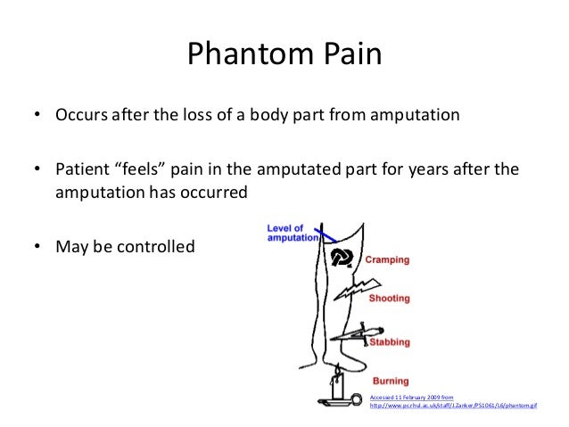pain mangement Lecture for 3rd year MBBS