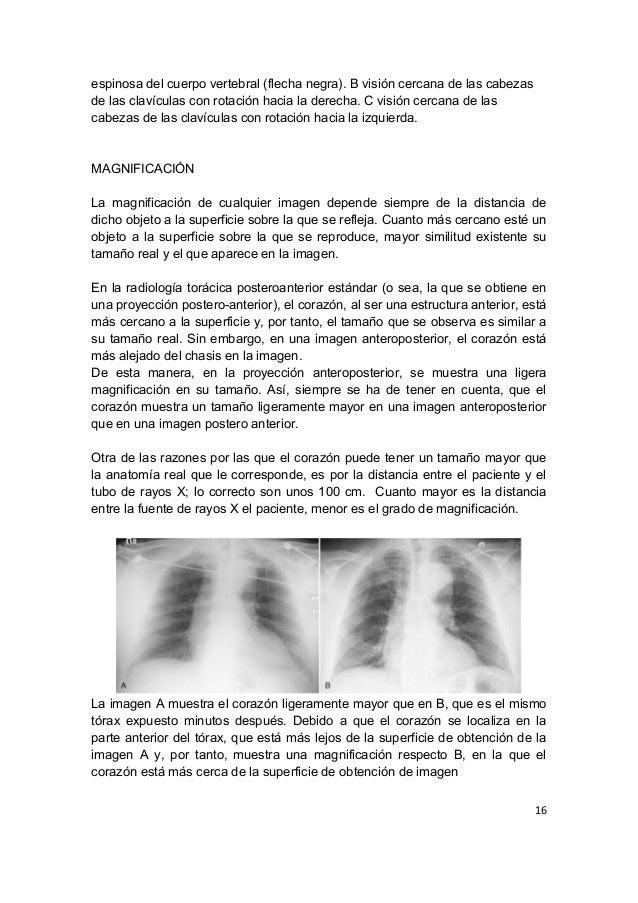 2016.03.29) Lectura de Radiografía de Tórax (Parte 1) (DOC)