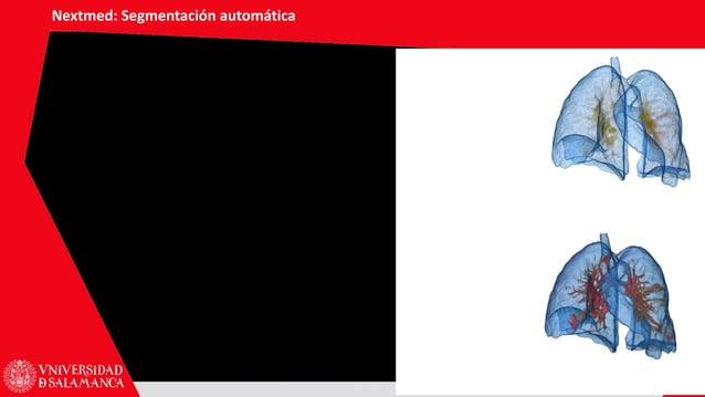 Nextmed: Segmentación automática 56