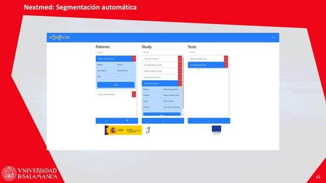 Nextmed: Segmentación automática 62 Nextmed: Segmentación automática 62