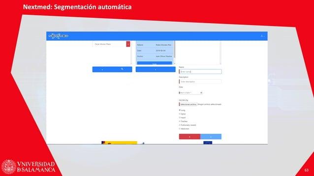 Nextmed: Segmentación automática 63 Nextmed: Segmentación automática 63