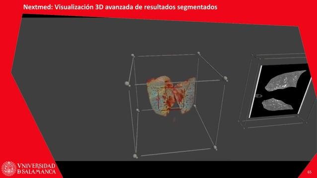 PLATAFORMAS DE REALIDAD AUMENTADA Y REALIDAD VIRTUAL PARA LA FORMACIÓN Y LA PRÁCTICA MÉDICA Santiago González Izard Result...