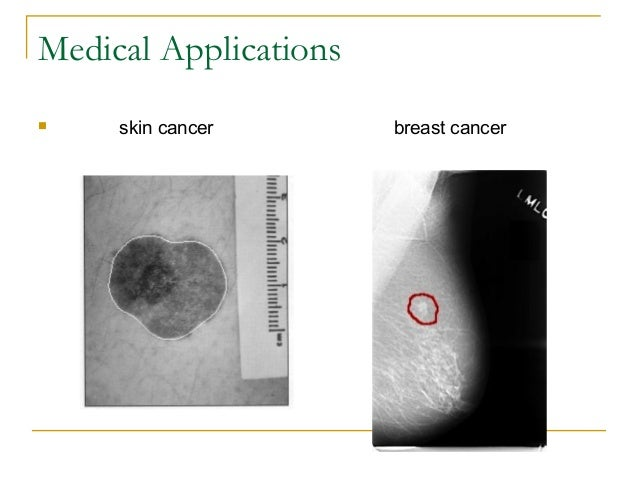 Medical Applications skin cancer breast cancer