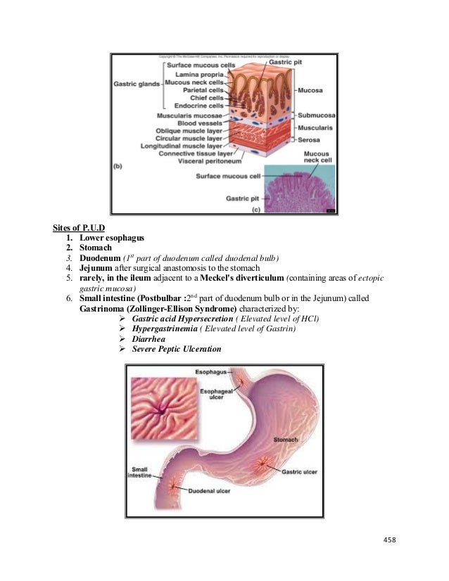 Lecture 16 esophagus and stomach disorders - Pathology
