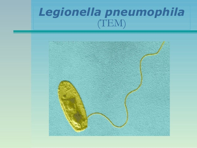 Legionella Pneumophila Symptoms  Driverlayer Search Engine. Tanda Signs Of Stroke. Geek Signs Of Stroke. Sat Signs Of Stroke. Obstruction Signs Of Stroke. Main Street Signs Of Stroke. Arcade Signs Of Stroke. Ghostbusters Signs. Mucinex Signs