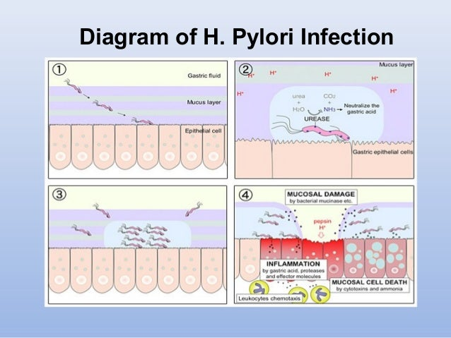 Lecture 3 Diseases Caused By Bacterial Infection