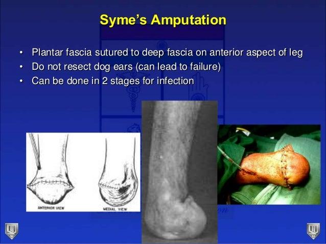 Cause Of Dog Ears Amputation