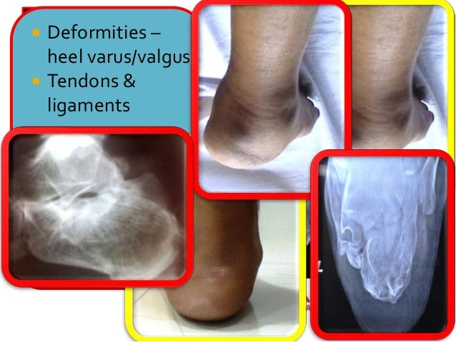 Lecture 42 shah calcaneal malunions