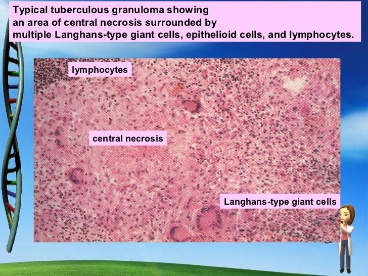 Examples of Chronic Granulomatous Inflammation:BacterialTB, leprosy, syphilis,ParasiticSchistosomiasisFungalCryptococcosis...