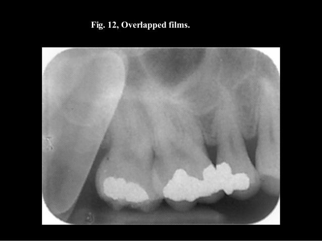 Lecture 7 dental x ray film, processing and processing ...