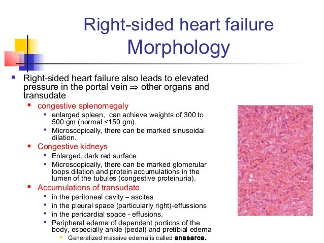 essay on heart failure