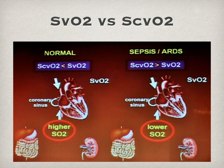 relationship between svo2 and scvo2