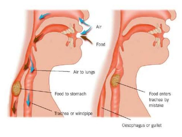 Lecture Dysphagia Following Acdf Surgery