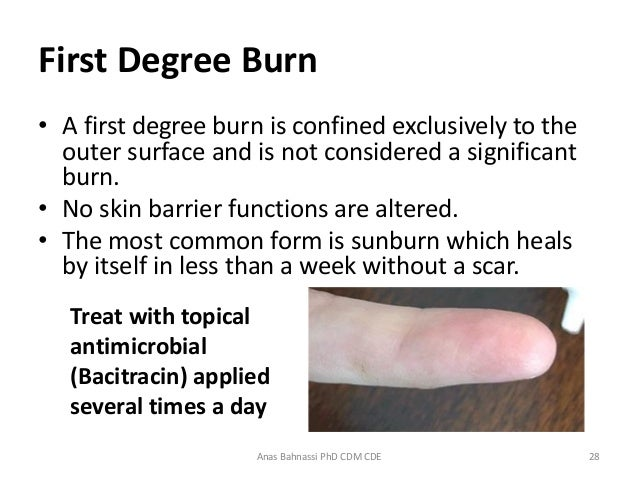 Lecture four burns first Aid