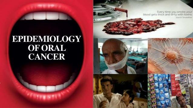 EPIDEMIOLOGY OF ORAL CANCER