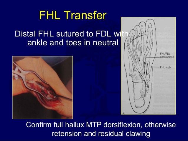 achilles tendon rupture surgical technique