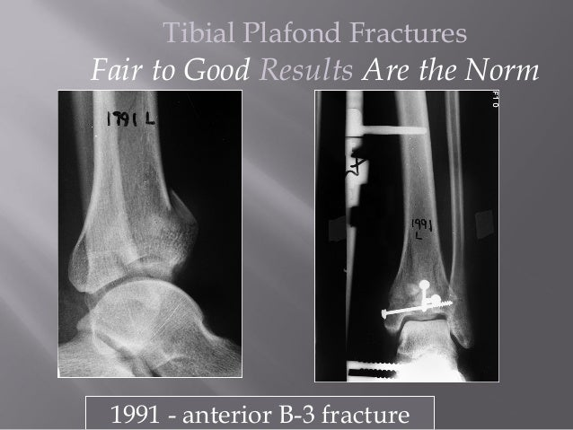 Image Gallery Plafond Fracture