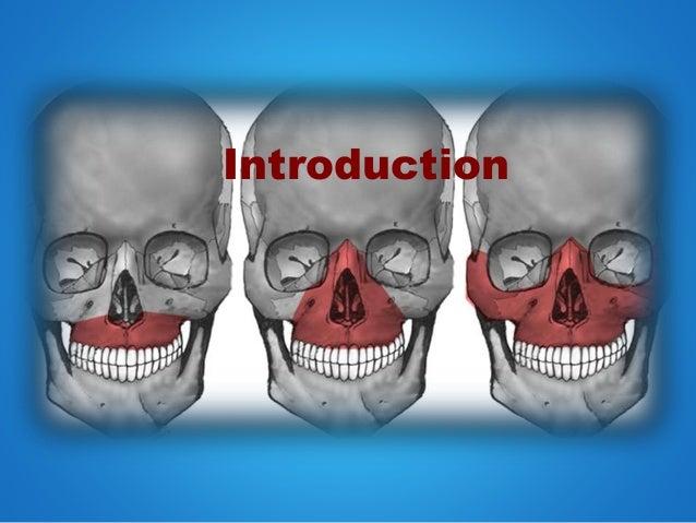 Lefort 1 osteotomy Slide 3