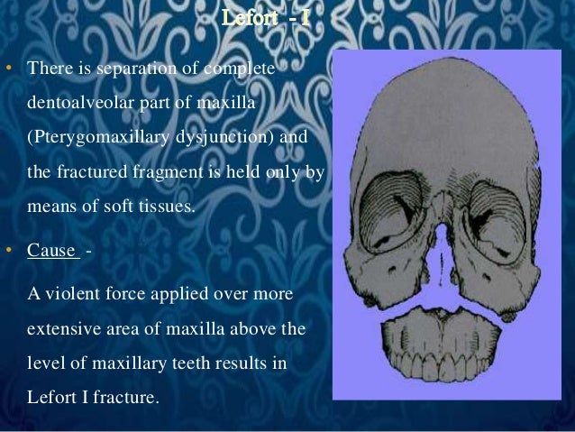 • There is separation of complete  dentoalveolar part of maxilla  (Pterygomaxillary dysjunction) and  the fractured fragme...