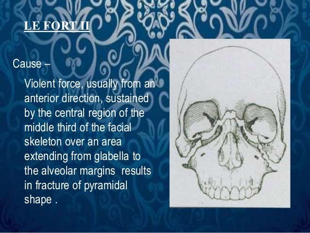 LE FORT II  Cause –  Violent force, usually from an  anterior direction, sustained  by the central region of the  middle t...