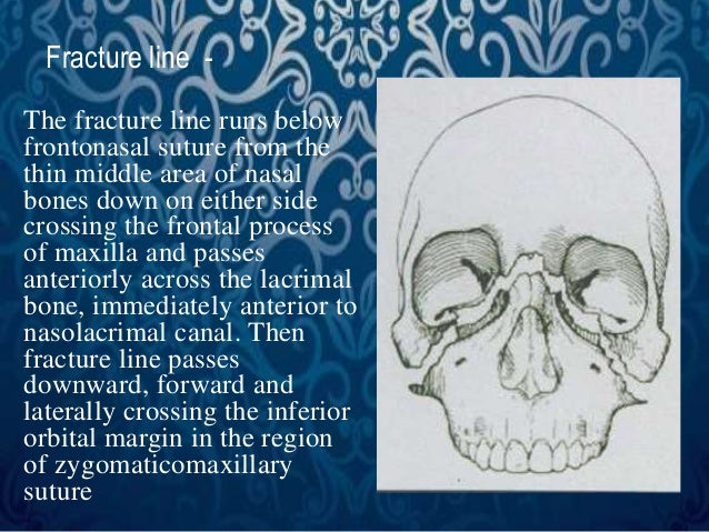 Fracture line -  The fracture line runs below  frontonasal suture from the  thin middle area of nasal  bones down on eithe...
