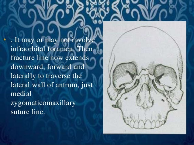 • . It may or may not involve  infraorbital foramen. Then  fracture line now extends  downward, forward and  laterally to ...