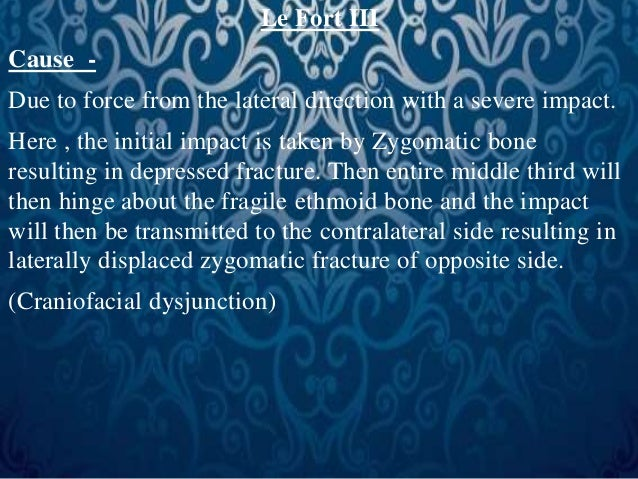 Le Fort III  Cause -  Due to force from the lateral direction with a severe impact.  Here , the initial impact is taken by...