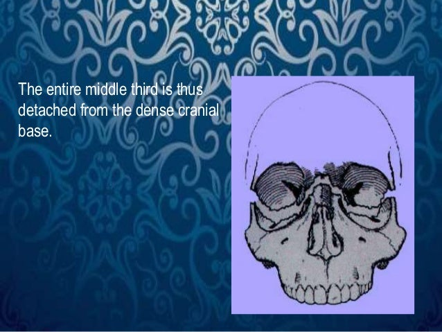 The entire middle third is thus  detached from the dense cranial  base.