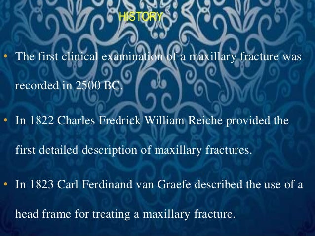HISTORY  • The first clinical examination of a maxillary fracture was  recorded in 2500 BC.  • In 1822 Charles Fredrick Wi...