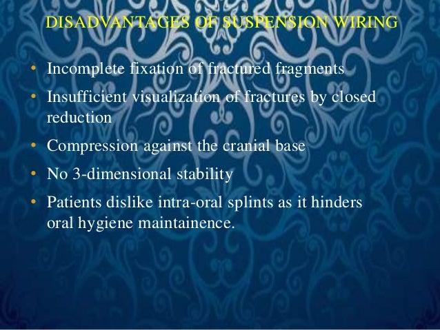 Direct osteosynthesis  Intraosseous Wires-  1. Maxillary (Lefort –I )  2. Zygomaticomaxillary (Lefort –II)  3. Frontonasal...