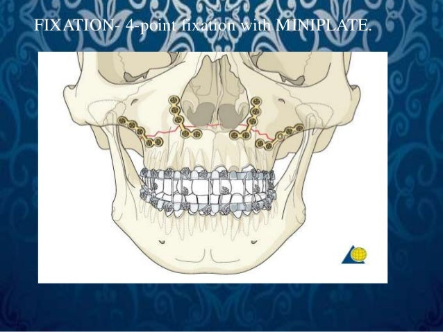 LEFORT II FRACTURE   SURGICAL APPROACH-A  – Subciliary incision  B – Sub tarsal incision  C - Infraorbital incision  D - ...
