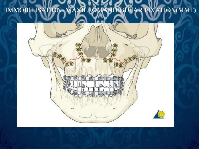 Existing Laceration  Maxillary vestibular approach  can also be taken for LeFort II  fracture