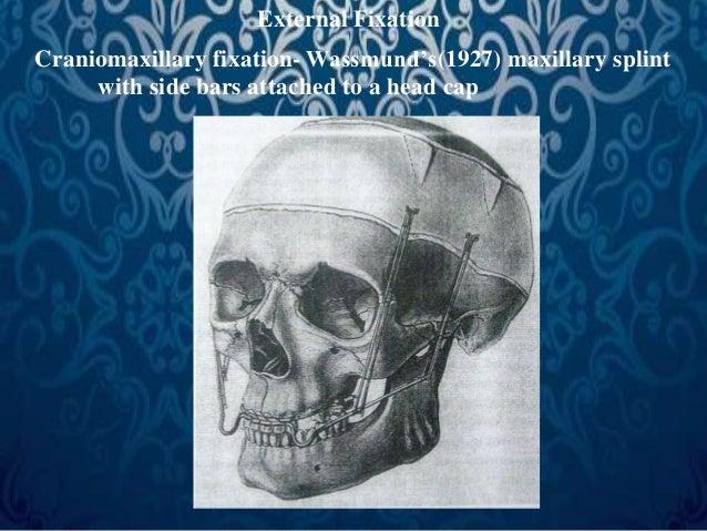 External Fixation  Craniomaxillary fixation- Wassmund's(1927) maxillary splint  with side bars attached to a head cap