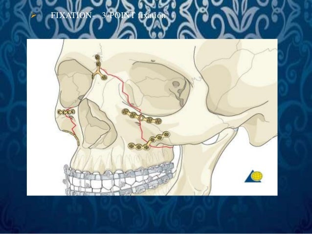 • STAGE III. DEFINITIVE TREATMENT  LEFORT III FRACTURE-   SURGICAL APPROACH-Existing  Laceration