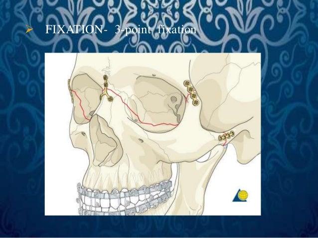 PRINCIPLES OF MAXILLARY  RECONSTRUCTION  • Miniplates can bridge gaps of up to approximately 0.5cms  • Gaps >0.5cms – bone...