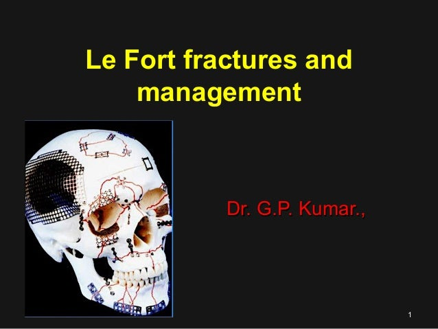 Le Fort fractures and management Dr. G.P. Kumar.,Dr. G.P. Kumar., 11