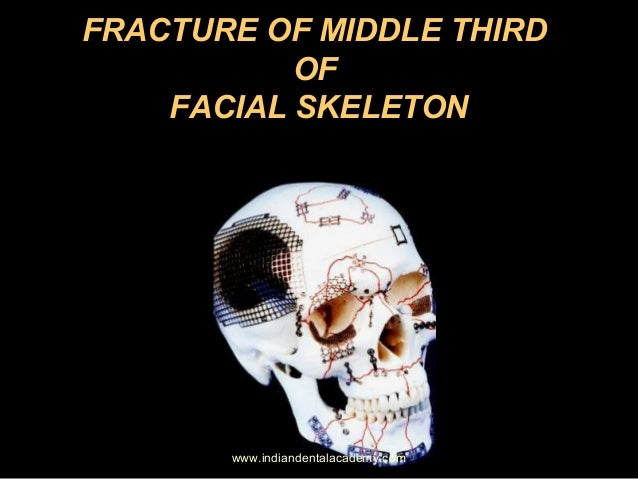 FRACTURE OF MIDDLE THIRD OF FACIAL SKELETON  www.indiandentalacademy.com