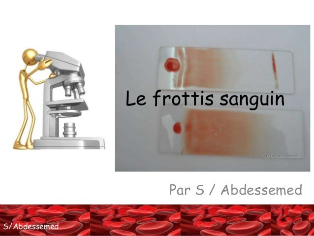 SS//AAbbddeessseemmeedd  Le frottis sanguin  Par S / Abdessemed