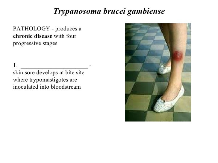 Trypanosoma Brucei Gambiense Disease Leishmania And ...