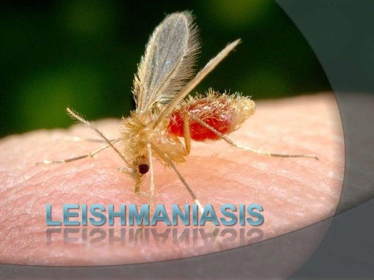 Leishmaniasis<br />