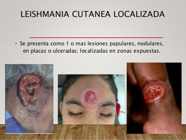 LEISHMANIASIS MUCOSA • Se produce como resultado de metastasis hematogena en la mucusa nasal u orofaringuea de una infecci...