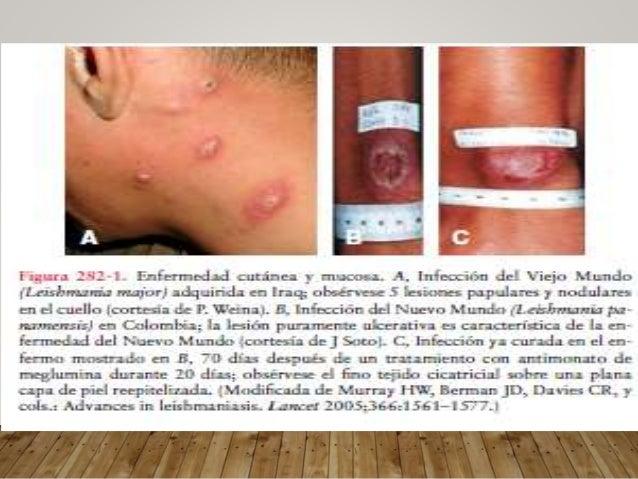 LEISHMANIASIS VISCERAL Niños <5a Asintomatica No evidencia clinica Oligosintomatica Sintomas constitucionales