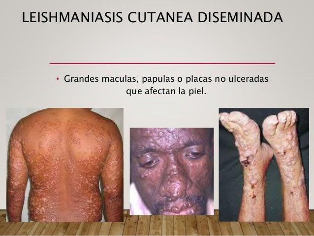 KALA AZAR • Hepatoesplenomegalia • Perdida de peso • Pancitopenia • Anemia • Edema • Ictericia • Ascitis • ICC • Infeccion...