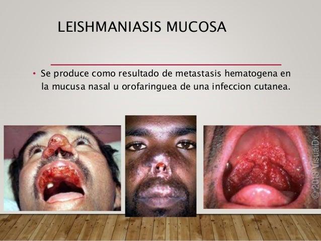 • LM y LCL pruebas serologicas no son utiles. • LV si son utilizadas. Pruebas de Laboratorio En kala-azar: • Anemia (hemog...