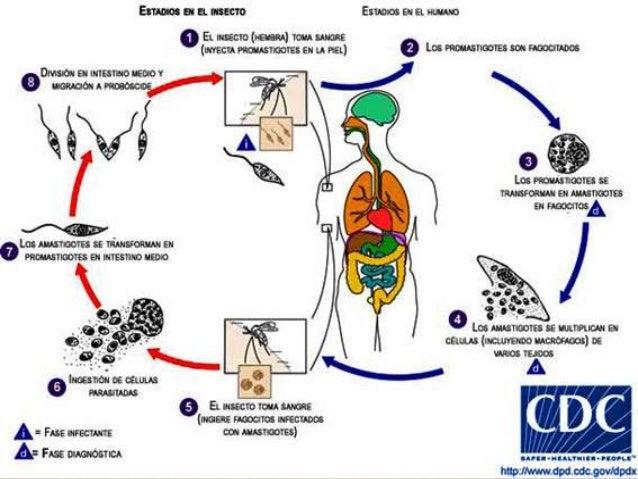 PATOLOGÍA Inflamación granulomatosa crónica LV se produce hiperplasia de cel. reticuloendoteliales LCD infiltración con ma...